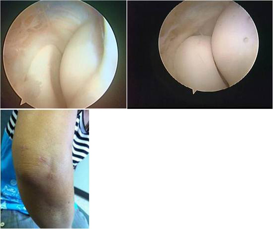 lateral-side-elbow-pain-02
